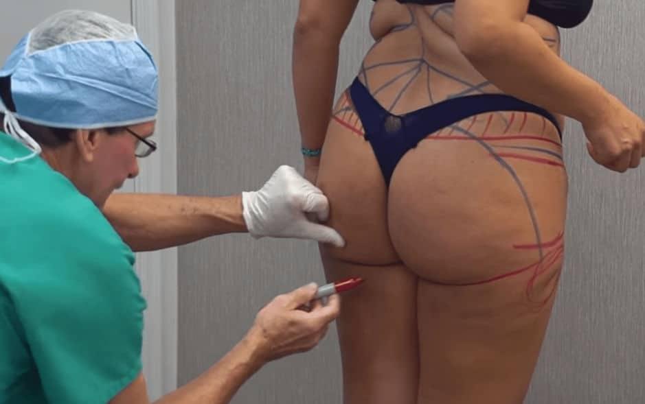 butt surgery